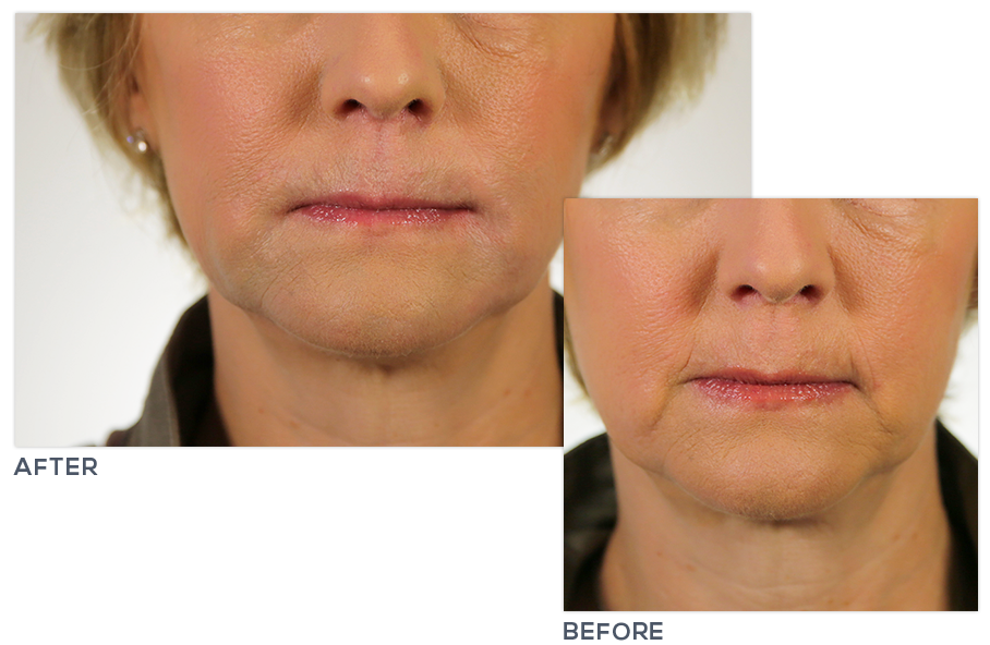 Botox® Cosmetic Wrinkle Reduction Treatment | Face Logic Medical Spa